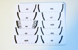 Messtabelle für unbezahnte Kiefer